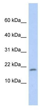 Western blot - Anti-RPS15 antibody (ab90902)