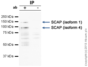 Immunoprecipitation - Anti-SCAP antibody (ab91323)