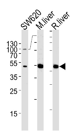 Western blot - Anti-Ornithine Carbamoyltransferase antibody (ab91418)
