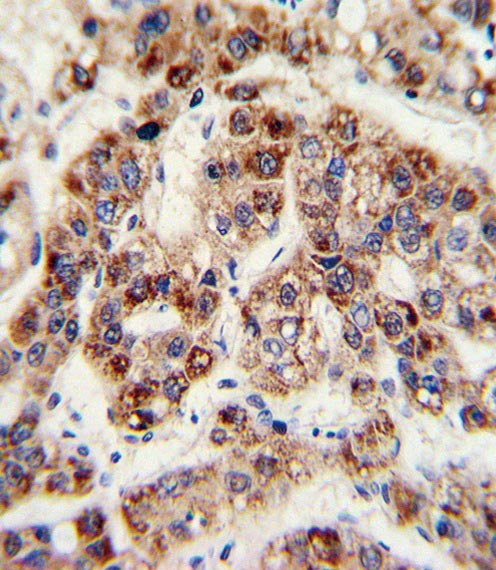 Immunohistochemistry (Formalin/PFA-fixed paraffin-embedded sections) - Anti-Ornithine Carbamoyltransferase antibody (ab91418)