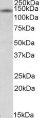 Western blot - Anti-RIP140 antibody (ab91476)