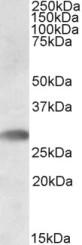 Western blot - Anti-TREML1 antibody (ab91480)