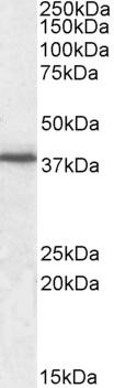 Western blot - Anti-Junctional Adhesion Molecule 1 antibody (ab91501)