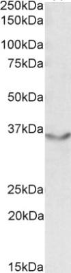 Western blot - Anti-Junctional Adhesion Molecule 2 antibody (ab91517)
