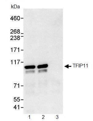 Immunoprecipitation - Anti-TFIP11 antibody (ab91520)