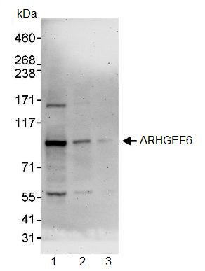 Western blot - Anti-ARHGEF6 antibody (ab91562)