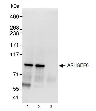 Immunoprecipitation - Anti-ARHGEF6 antibody (ab91562)