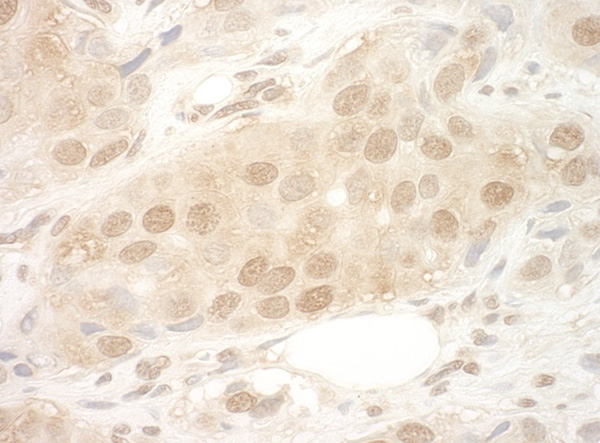 Immunohistochemistry (Formalin/PFA-fixed paraffin-embedded sections) - Anti-eIF2B epsilon antibody (ab91563)