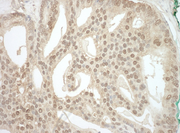 Immunohistochemistry (Formalin/PFA-fixed paraffin-embedded sections) - Anti-ADRM1 antibody (ab91567)