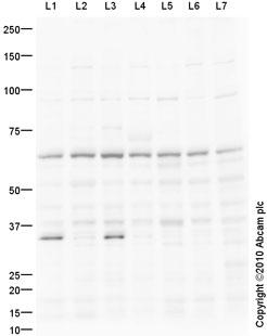 Western blot - Anti-PRDM14 antibody (ab91587)