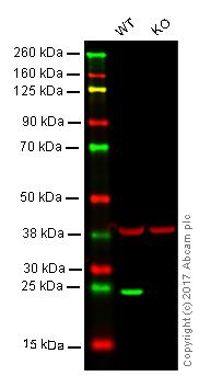 Western blot - Anti-Lysophospholipase 1 antibody [EPR3667] (ab91606)
