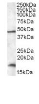 Western blot - Anti-RBM3 antibody (ab92292)