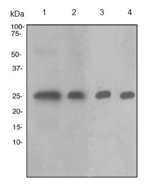 Western blot - Tubulin Polymerization Promoting Protein antibody [EPR3316] (ab92305)