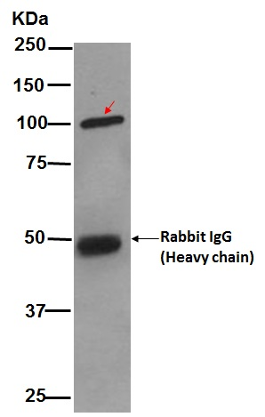 Immunoprecipitation - Anti-SATB1 antibody [EPR3895] (ab92307)