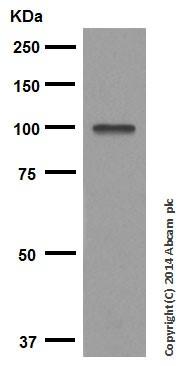 Western blot - Anti-SATB1 antibody [EPR3895] (ab92307)