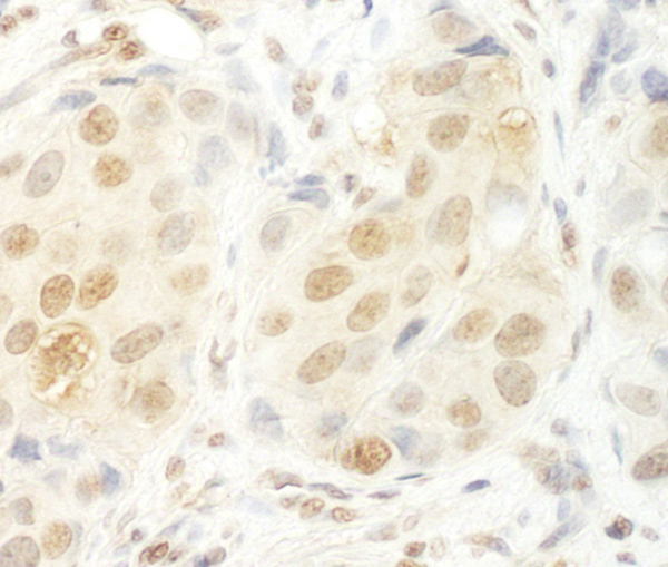 Immunohistochemistry (Formalin/PFA-fixed paraffin-embedded sections) - Anti-UTP6 antibody (ab92325)