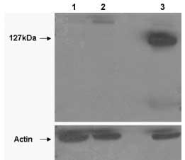 Western blot - Anti-Tankyrase 2 antibody (ab92329)
