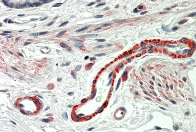 Immunohistochemistry (Formalin/PFA-fixed paraffin-embedded sections) - Anti-THBS3 antibody (ab92340)