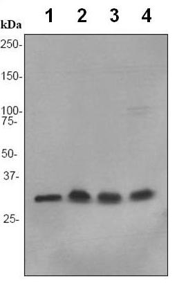 Western blot - Anti-NDUFAF1 antibody [EPR2795] (ab92454)