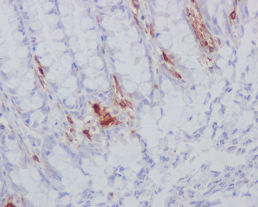 Immunohistochemistry (Formalin/PFA-fixed paraffin-embedded sections) - Anti-HLA-DR antibody [EPR3692] (ab92511)