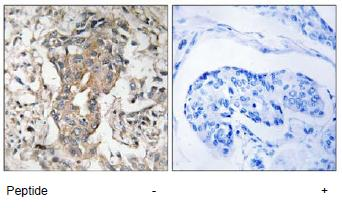 Immunohistochemistry (Formalin/PFA-fixed paraffin-embedded sections) - Anti-SPHK2 antibody (ab92607)