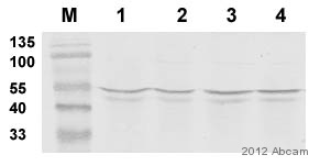 Western blot - Anti-MT-ND5 antibody (ab92624)