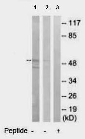 Western blot - Anti-GABA A Receptor alpha 6 antibody (ab92747)