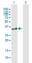 Western blot - Anti-GIMAP7 antibody (ab92894)