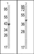 Western blot - Anti-HLA B27 antibody (ab93150)