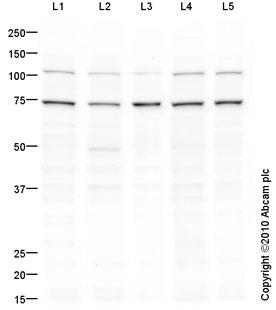 Western blot - Anti-PSMD1 antibody (ab93208)