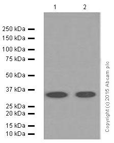 Western blot - Anti-CD8 antibody [EP1150Y] (ab93278)