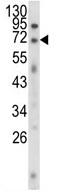 Western blot - Anti-EWSR1 antibody (ab93464)