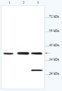 Western blot - Anti-CysLT2 antibody (ab93484)
