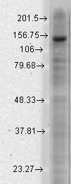 Western blot - Anti-KCNT2 antibody [S11-33] (ab93602)