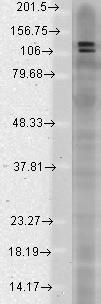 Western blot - Anti-DLGAP1 antibody [S127-31] (ab93611)