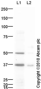 Western blot - Anti-RANKL antibody (ab93719)