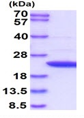 SDS-PAGE - Recombinant Human APRT protein (ab93740)