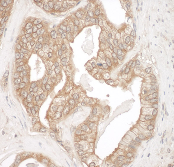 Immunohistochemistry (Formalin/PFA-fixed paraffin-embedded sections) - Anti-Cortactin antibody (ab93796)