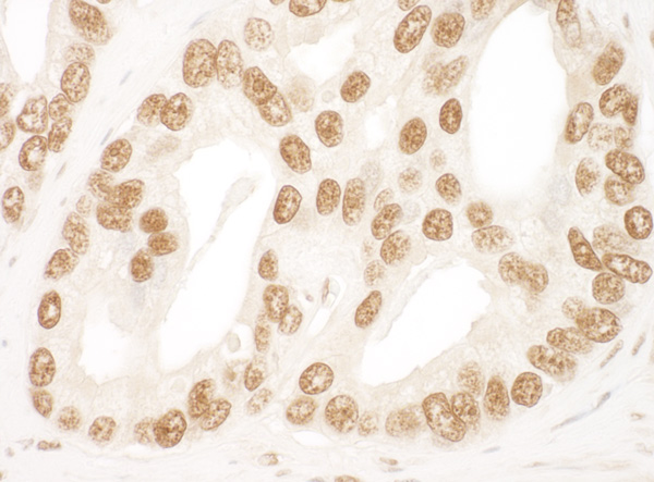 Immunohistochemistry (Formalin/PFA-fixed paraffin-embedded sections) - Anti-Ku80 antibody (ab93863)