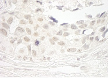 Immunohistochemistry (Formalin/PFA-fixed paraffin-embedded sections) - Anti-Protein Phosphatase 1 beta antibody (ab93874)