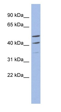 Western blot - Anti-MYPOP antibody (ab94406)