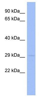 Western blot - Anti-RNF166 antibody (ab94409)