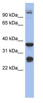 Western blot - Anti-Biglycan antibody (ab94460)