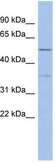 Western blot - Anti-ABHD15 antibody (ab94486)
