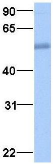 Western blot - Anti-SQSTM1 / p62 antibody (ab94489)