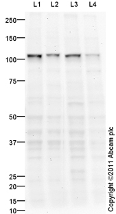 Western blot - Anti-UBE3A antibody (ab94493)
