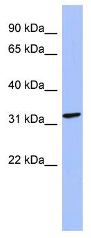 Western blot - Anti-MAGEB2 antibody (ab94497)