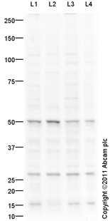 Western blot - Anti-Nova1 antibody (ab94511)