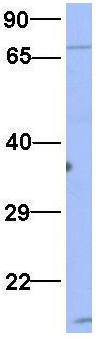 Western blot - Anti-RAVER2 antibody (ab94574)