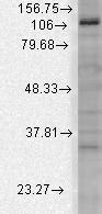 Western blot - Anti-KCNU1 antibody [S2-16] (ab94586)